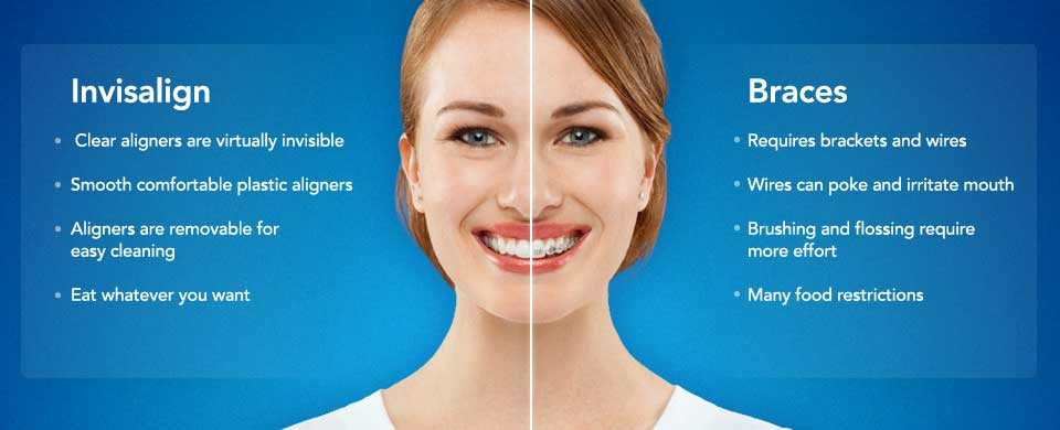 Invisalign vs. Braces